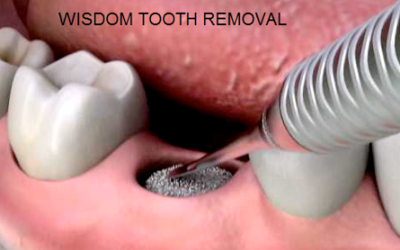 Wisdom Tooth Removal | Best Dental Services in Whitefield | Bangalore | Sunshine Dental