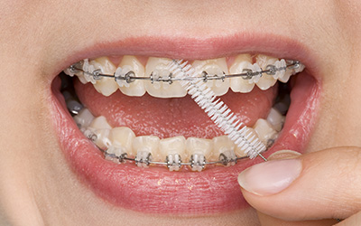 Braces | Best Dental Services in Whitefield | Bangalore | Sunshine Dental