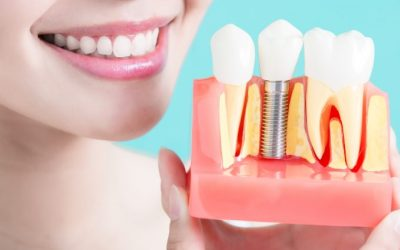 Dental Implants | Best Dental Services in Whitefield | Bangalore | Sunshine Dental