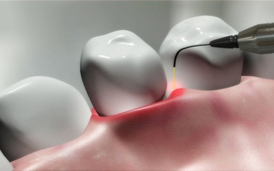 Laser Dentistry | Best Dental Services in Whitefield | Bangalore | Sunshine Dental