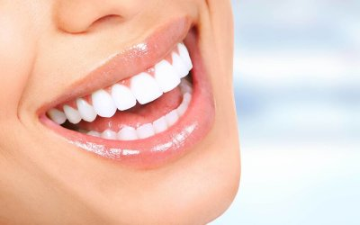 Teeth Whitening | Best Dental Services in Whitefield | Bangalore | Sunshine Dental