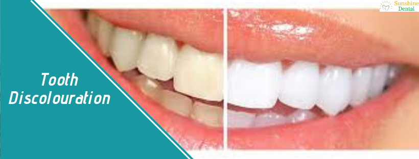 Tooth Discolouration | Best Dental Treatment in Whitefield | Sunshine Dental