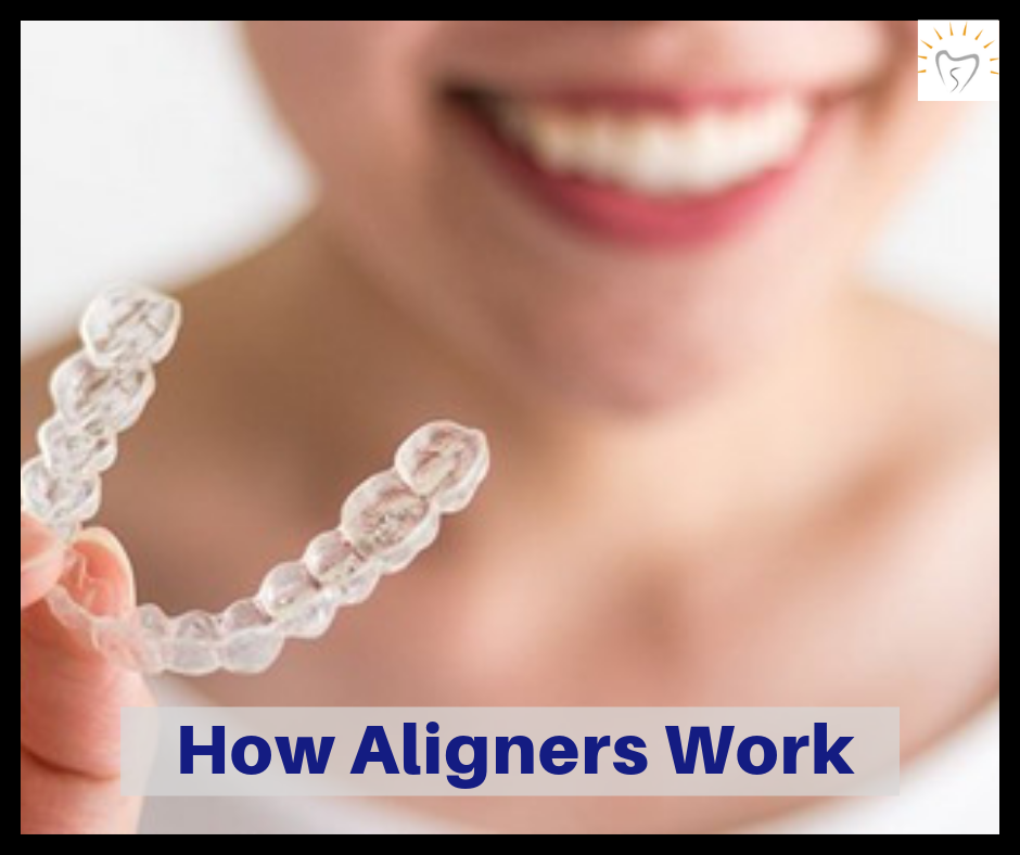 How Clear Aligners Work | Orthodontic Treatment with Clear Aligners