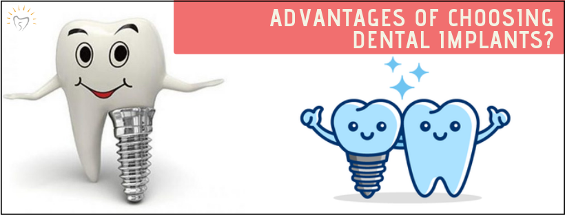 Advantages of Choosing Dental Implants | Best Dental Implants in Whitefield | Sunshine Dental