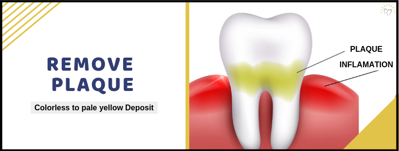 Remove Plaque | Best Dental Care Treatment In Whitefield