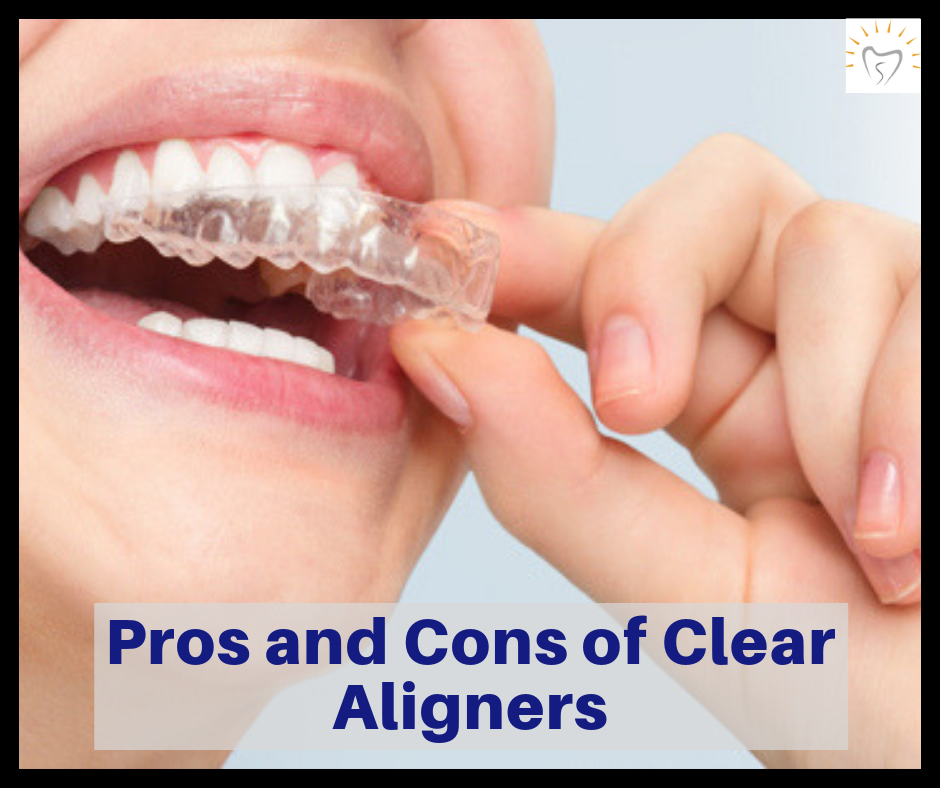 Pros and Cons of Clear Aligners