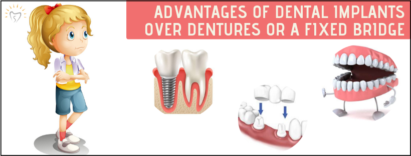 Advantages of Dental Implants Over Dentures Or a Fixed Bridge | Best Dental Implants in Whitefield | Sunshine Dental