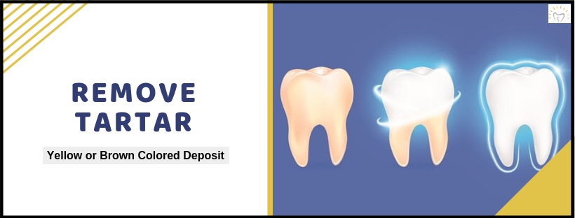 Remove Tartar | Best Dental Care Treatment In Whitefield