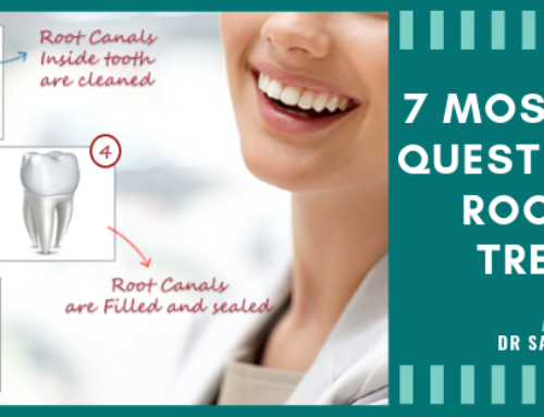7 Most Common Questions about Root Canal Treatment