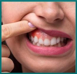 Swallen, Bleeding Gum   Gum Care Treatment in Bangalore