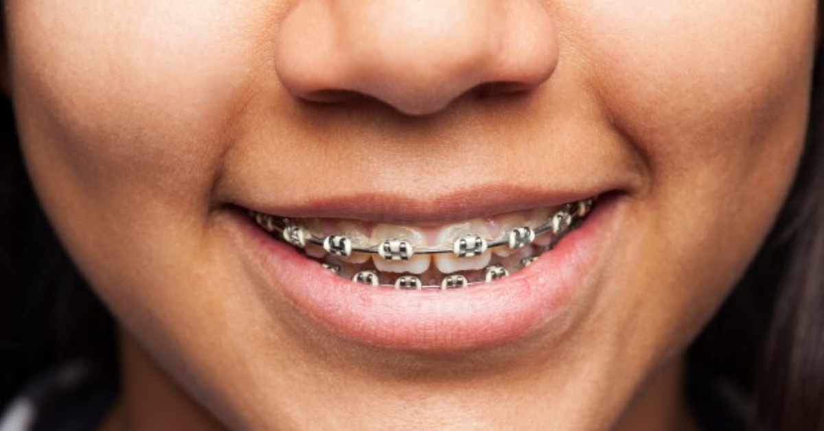 Orthodontic Treatment in Whitefield