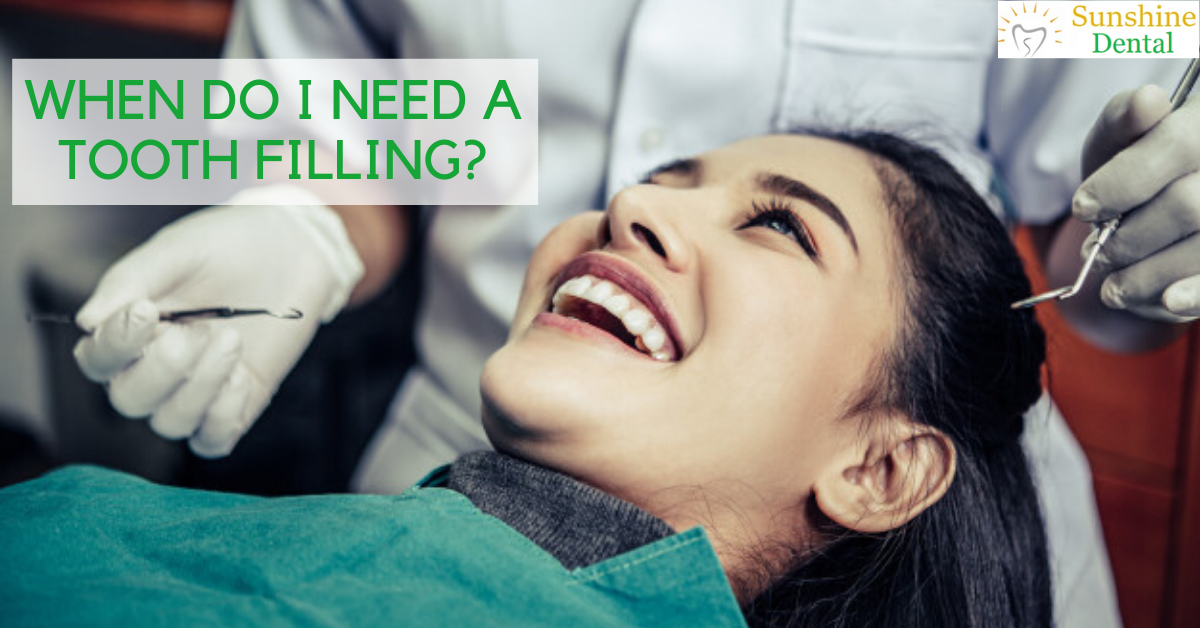 When do I need tooth filling? | Sunshine dental