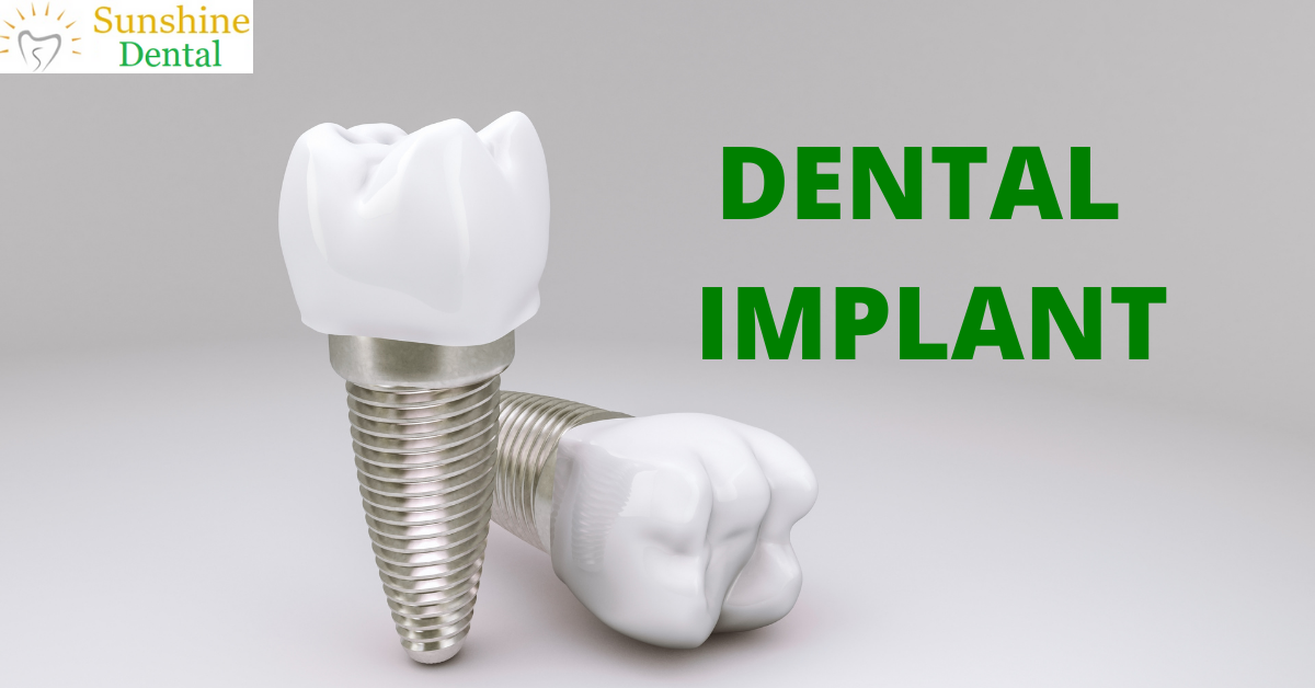 Best Dental Implant Treatment Clinic In Whitefield